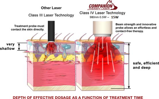 CTX-15 Laser